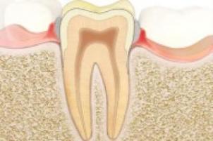 gingivitin belirtileri