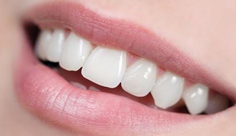 Nasıl beyaz dişlere sahip olurum?